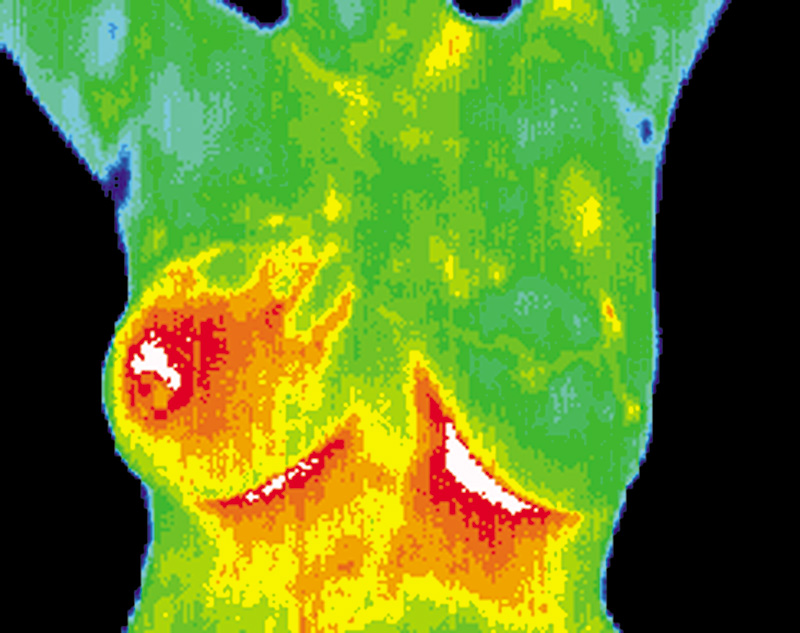 Thermography scan of woman's breasts showing areas of concern