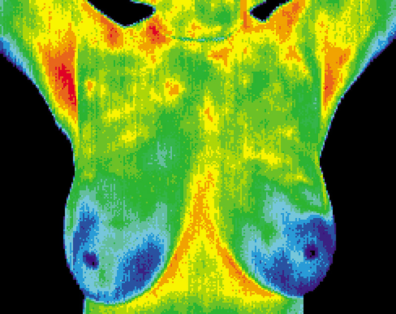 Thermography scan of woman's breasts showing normal results