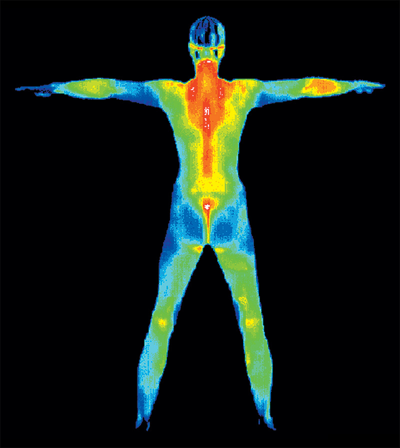 Full-body thermography scan