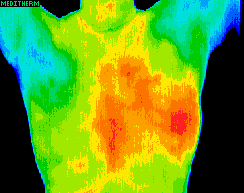 Thermography scan of back