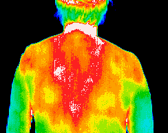 Thermography scan of back and shoulders