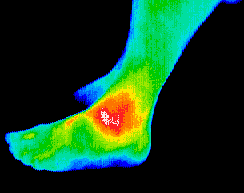 Thermography scan of ankle and foot