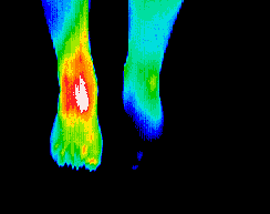 Thermography scan of foot