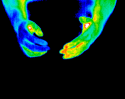 Thermography scan of hands