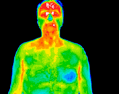 Thermography scan of head