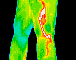 Thermography scan of thigh