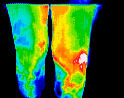 Thermography scan of legs
