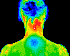 Thermography scan of bottom of feet